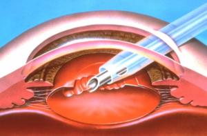 Удаление катаракты ультразвуком или лазером