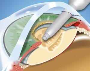 ультразвуковая операция катаракты